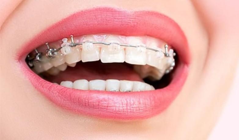Ağız Sağlığı ve Diş Teli Tedavisi