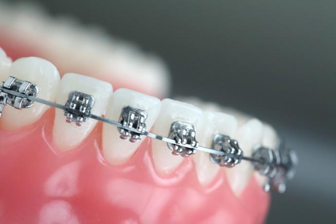 pekistirici ortodonti